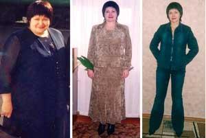 Я похудела на 62   кг! Истории похудения